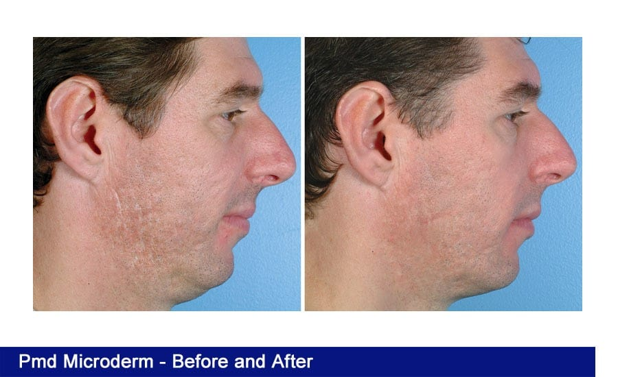 Microdermabrasion-before-after-3 • Renew Me Today